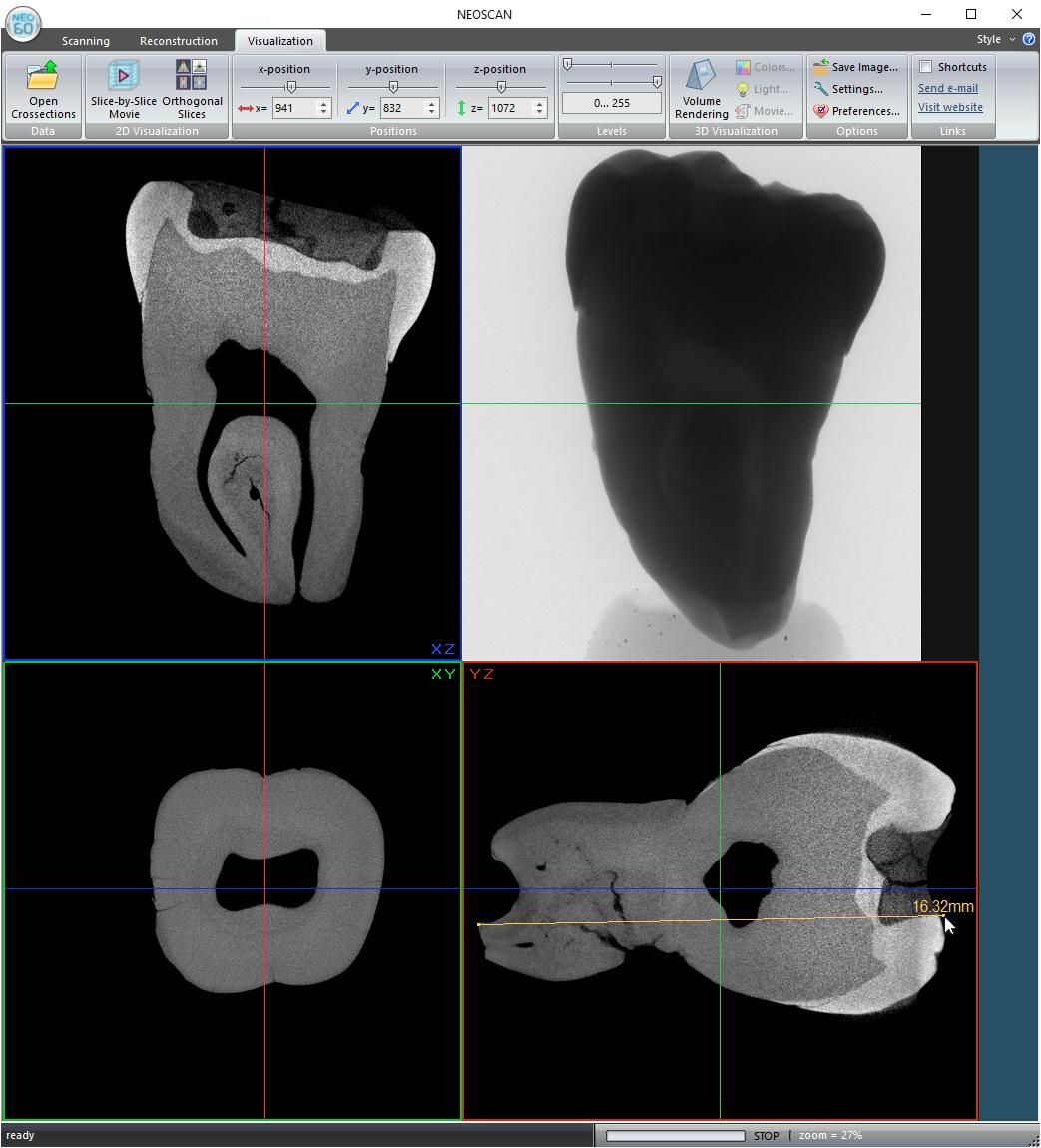 Tooth Neoscan N60